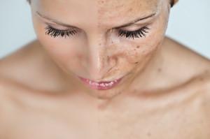 hiperpigmentacija - prije i poslije